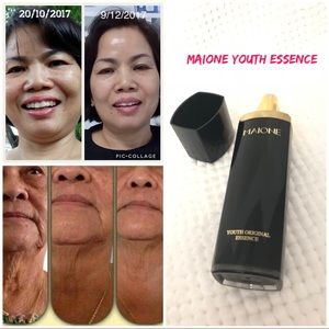 Saggy and aging skin? I can help